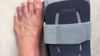 Passion and disappointment of Kona – one busted foot and one toe!!!